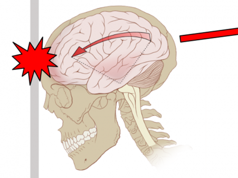 The reality of concussions